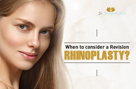 When to consider a Revision Rhinoplasty?