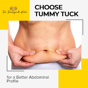 Tummy Tuck for a Better Abdominal