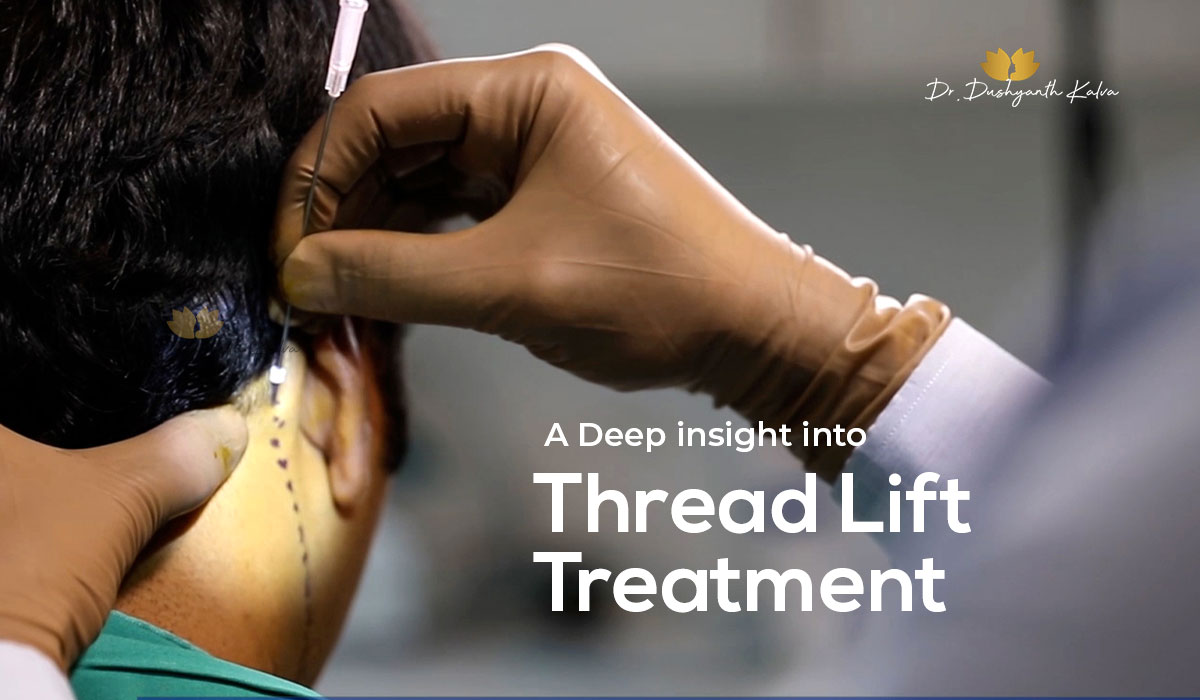 thread lift treatment