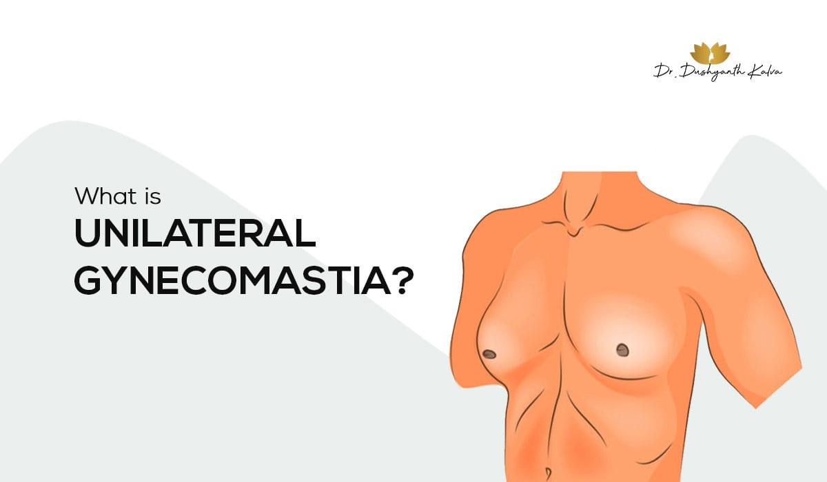 Unilateral Gynecomastia