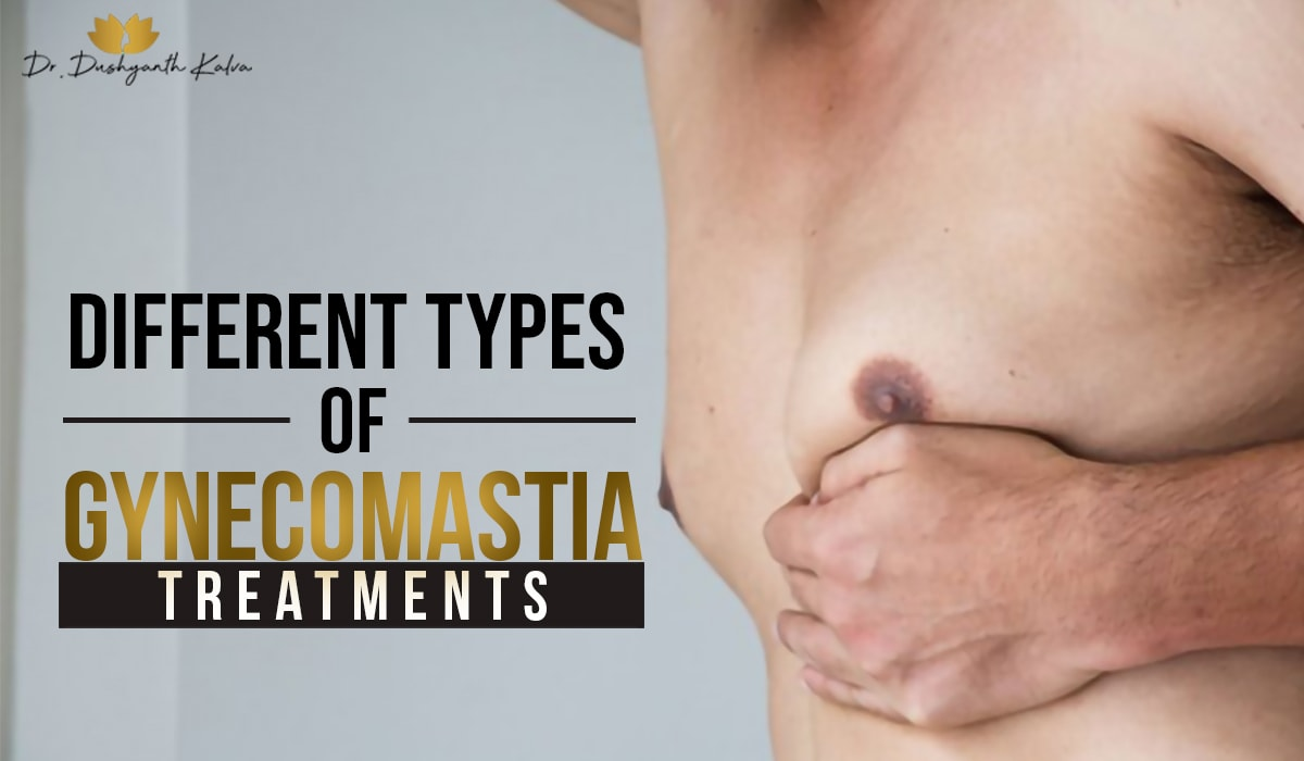 gynecomastia surgery in hyderabad