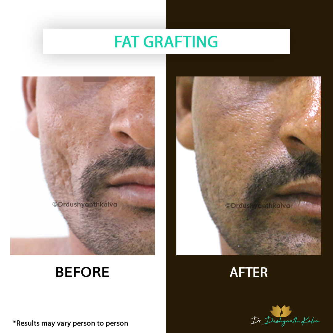 Fat Grafting Before and After
