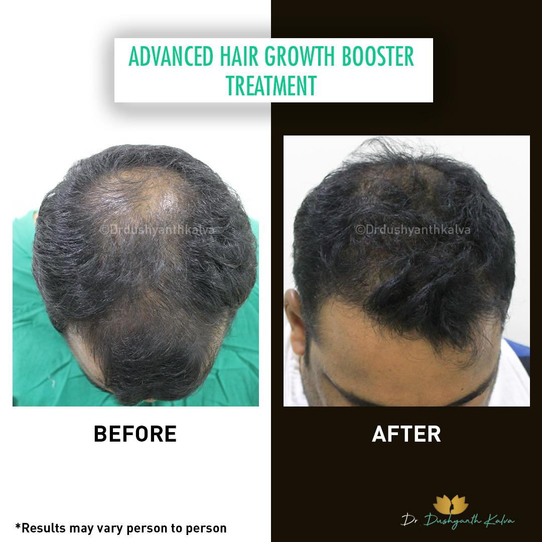 ADVANCED HAIR-GROWTH-BOOSTER-TREATMENT