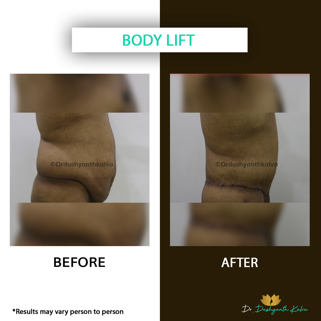 Body Lift Before and After